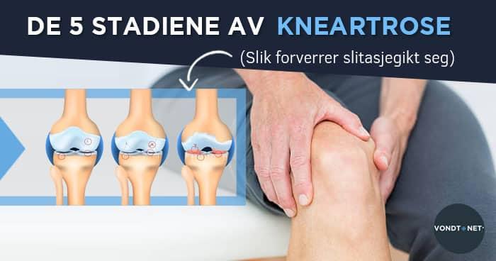 korai osteoarthritis a térd