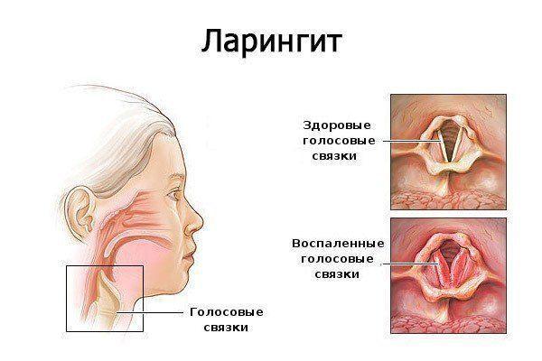 lidáz az ízületek kezelésében)