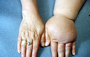 lábödéma térd artrózisával)