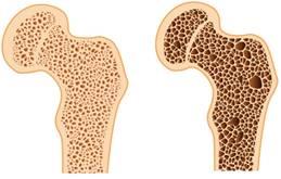 az ágyéki csontritkulás gyógyszeres kezelése