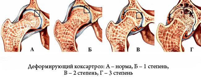 hogyan lehet lefogyni a csípőízület artrózisával)