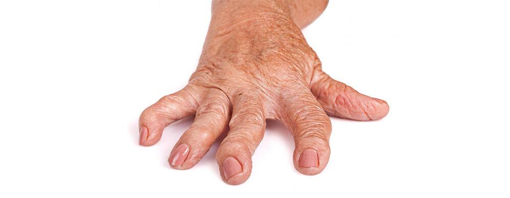 ízületi fájdalom időskorúaknál