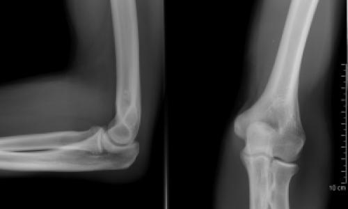 a kar bal ízületének osteochondrosis)