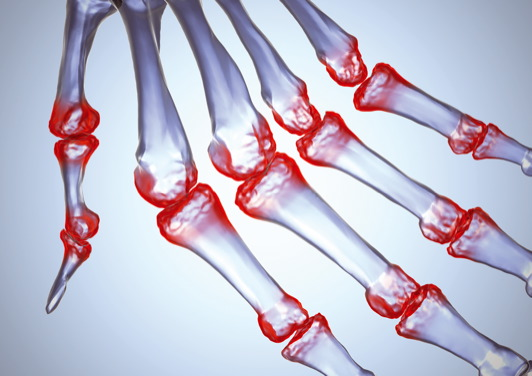 ki kezeli a könyök artrózist