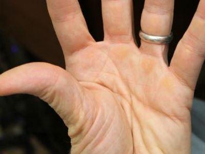 az idegrendszer károsodása kötőszöveti betegségek esetén