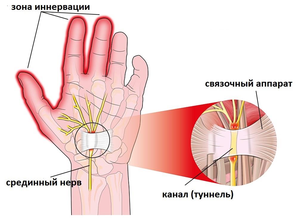 az első metacarpalis phalangeális ízületi gyulladás)