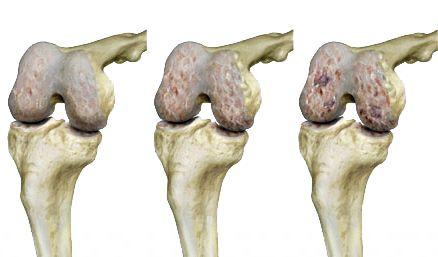 alternatív gyógyászat artrózis kezelése