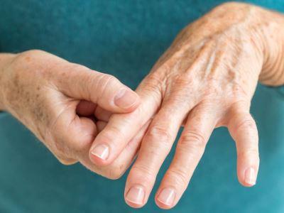 a kéz duzzanatával, az ízületek fájdalma)
