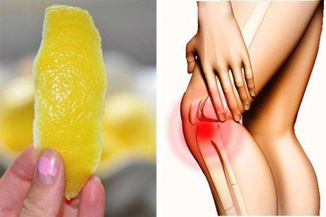 Az ízületi gyulladás kezelése természetes gyógymódokkal