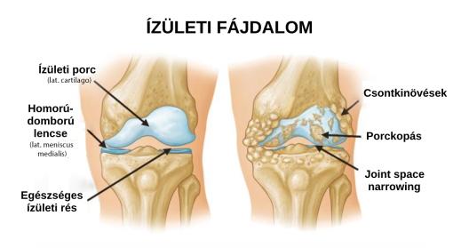 a lábak és a karok izmai és ízületei fájnak