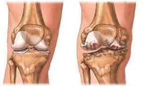 kompresszió artrózis kezelésére