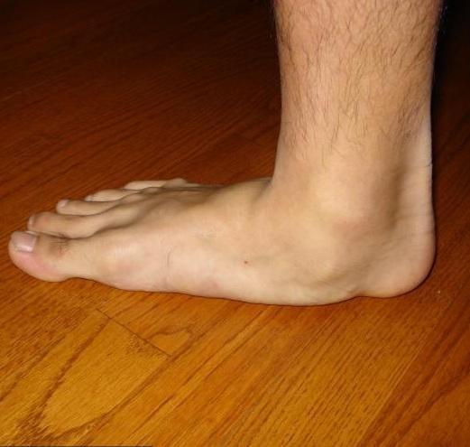 láb- és bokaízület betegségei