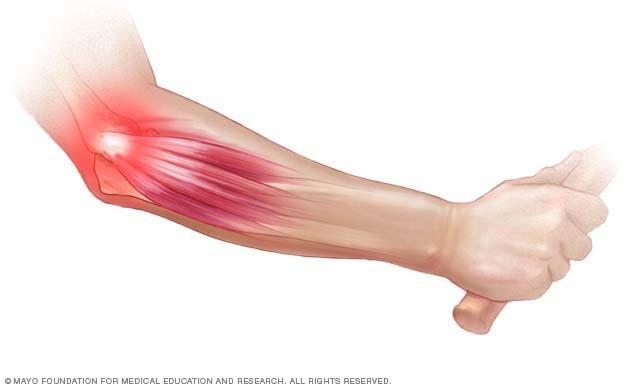 a könyökízület reumatoid artritisz kezelése összeroppant a vállízületben fájdalom nélkül