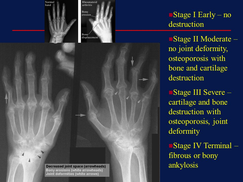 rheumatoid arthritis radiology stages