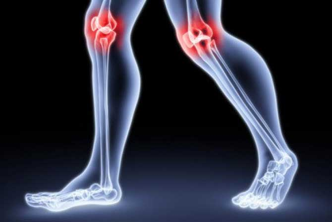 a térd artrózisának kezelése hipertóniás oldattal