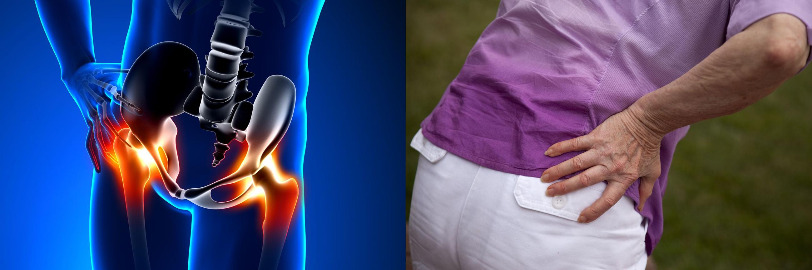 súlyos fájdalom a csípőízületekben hogyan kell kezelni