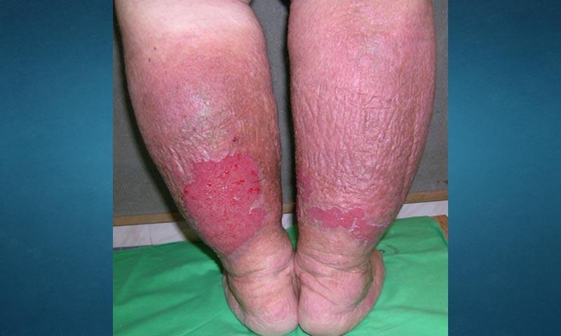 vörös és duzzadt lábak súlyos ízületi fájdalom időskorban