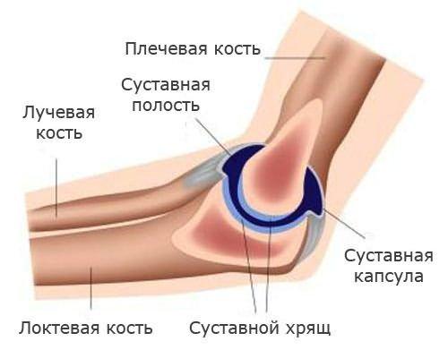 akut fájdalom a bal könyökízületben