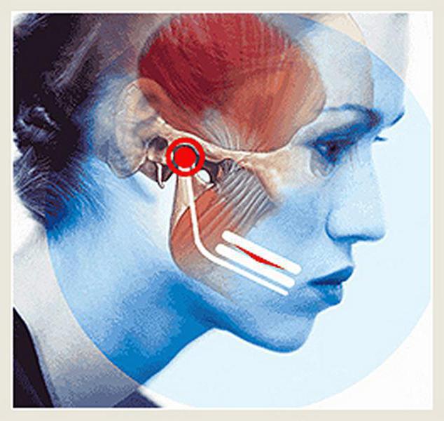 posztraumás artrózis, mint a kezelés térd sérülések áttekintése