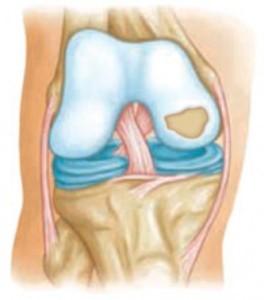 a csípőízületek ízületi szakaszai)