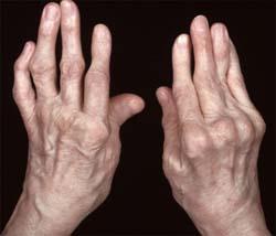 a kézízületek porcának gyulladása köhögés kiütés ízületi fájdalom