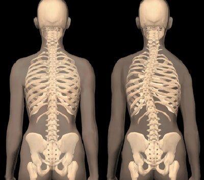 mi a csípő tünetei