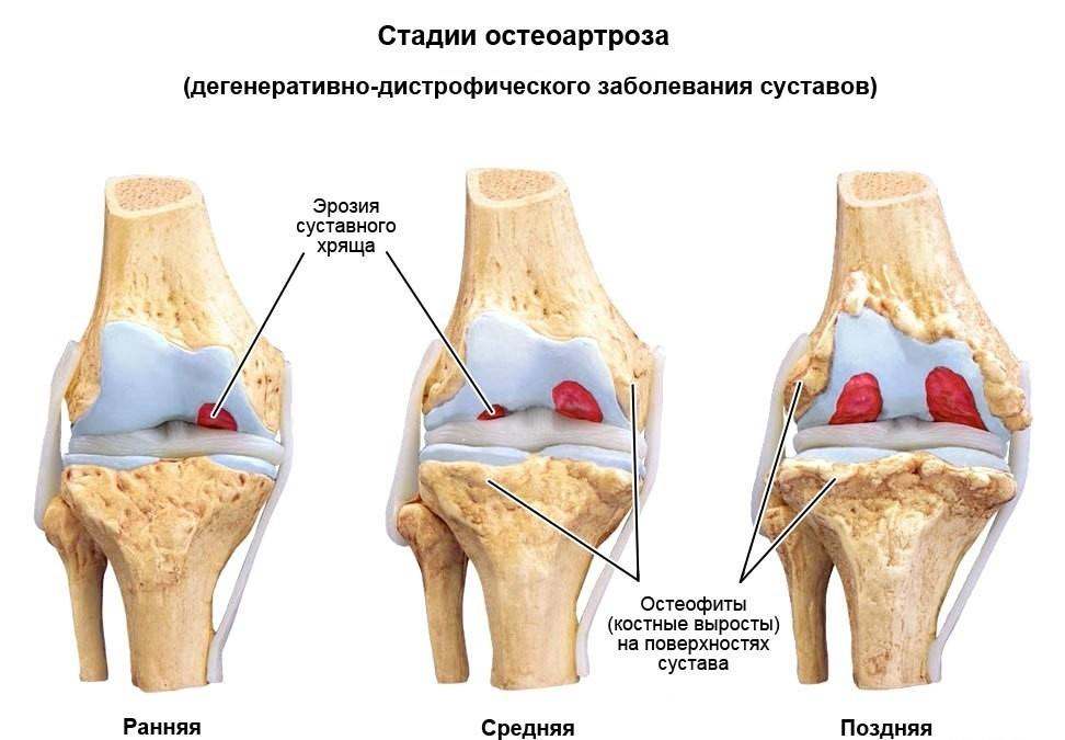 csípőízületek szinovitisz kezelése)
