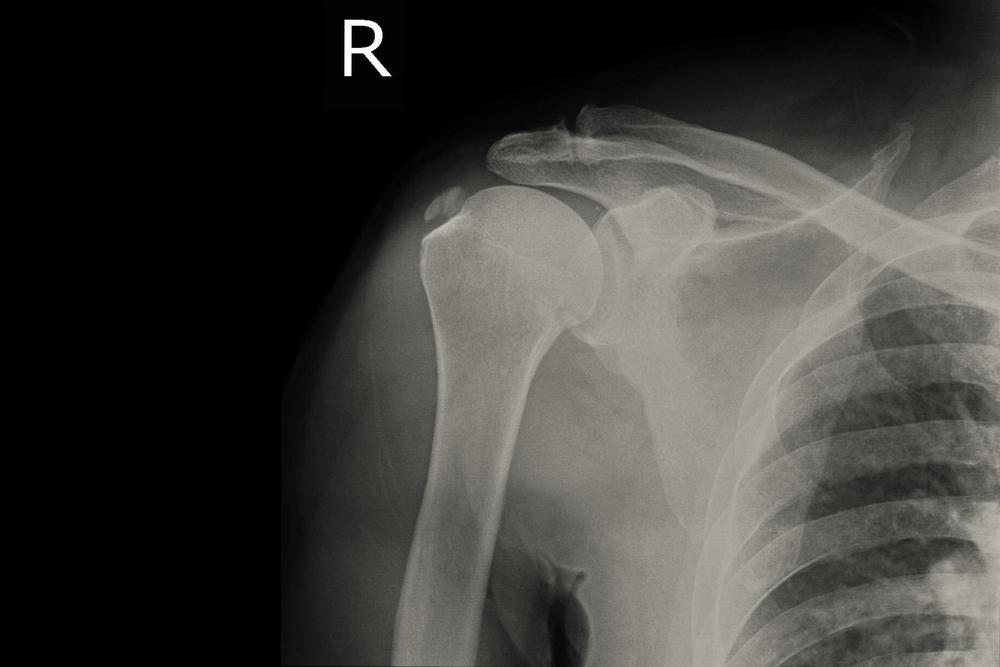 a nyaki és a vállízületek fájdalma okoz)