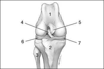 a térdízület 3. fokú deformált artrózisa