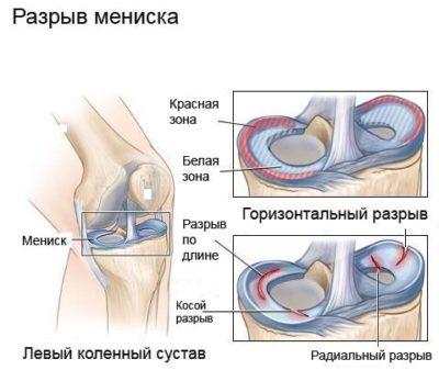 a térd exostosisának kezelése a futás a térdízületeket kezeli