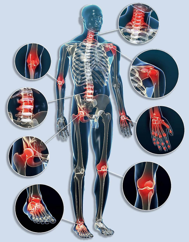 a csont- és ízületi betegségek röntgen-szemiotikája