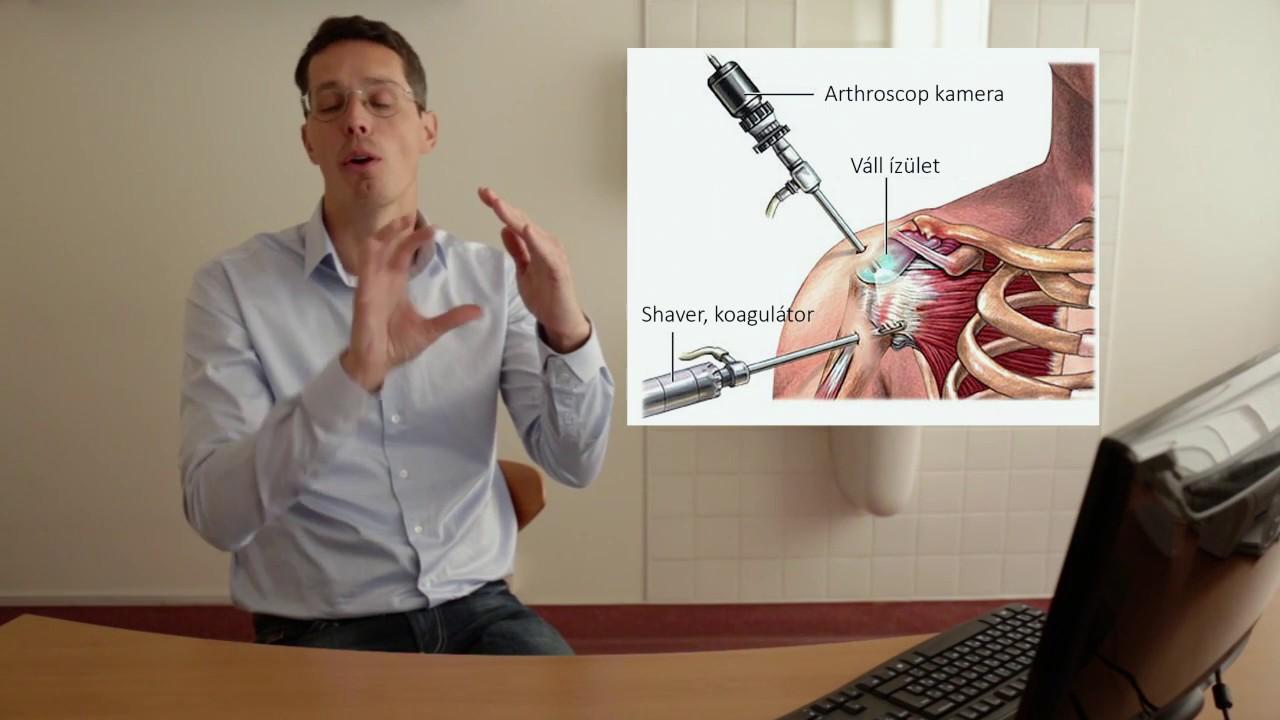 vállízület neoarthrosis kezelése)