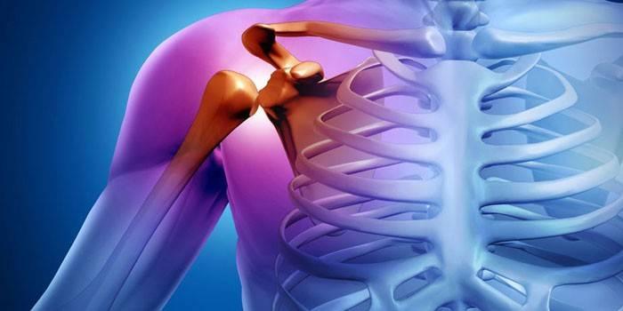 az izmok és ízületek fájdalmainak gyengült immunitása