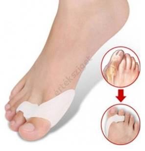 a nagy lábujjak ízületi fájdalmai
