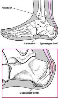 a középső lábujjak ízületei fájnak