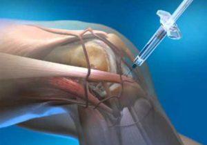 artrózis megállítja a kezelést