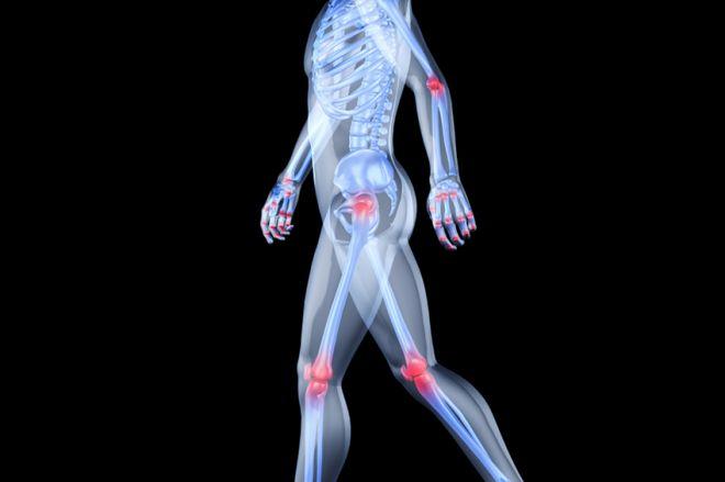Hogyan működik az ultrahang hidrokortizonnal az ízületi megbetegedések esetén