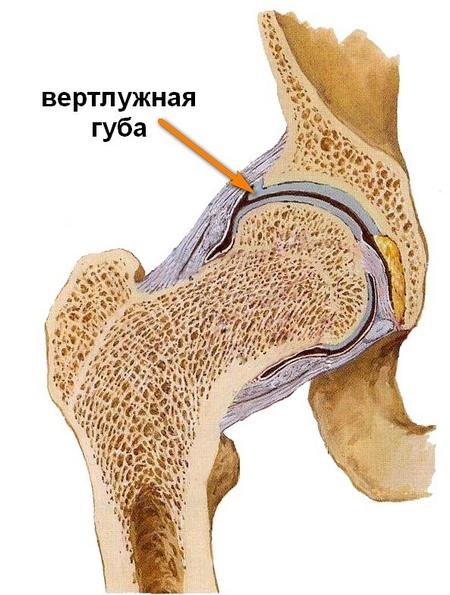 első fokú dysplasia a csípőízület kezelésében