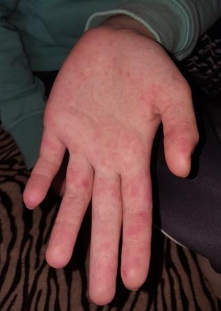 kiütés a kezén és ízületi fájdalom