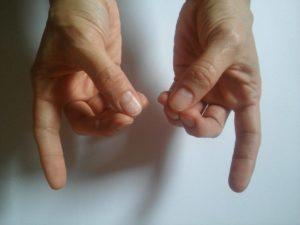 A bal kéz mutatóujja ízületi fájdalma - Kenőcs a vállízület diszlokációkhoz és rándulásokhoz