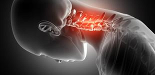 Csontritkulás: milyen tünetei vannak? - EgészségKalauz