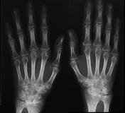 Az oligoarthritis okai és kezelése