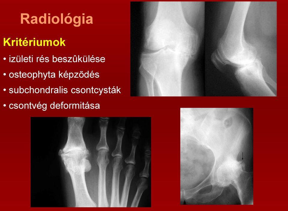 a bokaízület gyulladása nem szűnik meg a gerinc kenőcsének csontritkulása