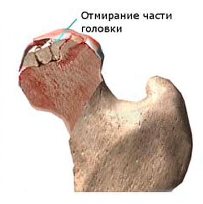 a csípőízület deformált artrózisa 3 fokos kezelés)