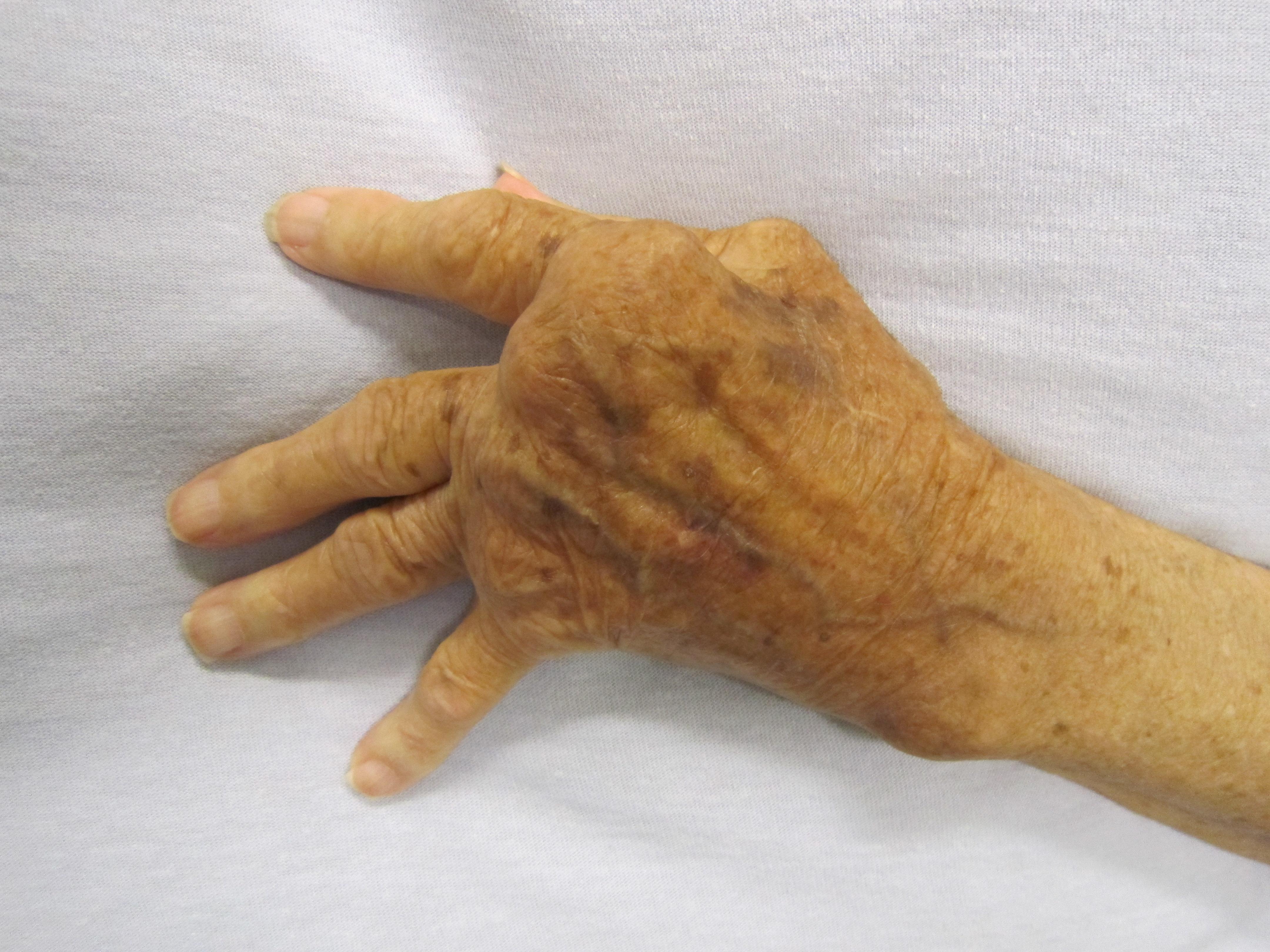 meleg ízületek rheumatoid arthritisben
