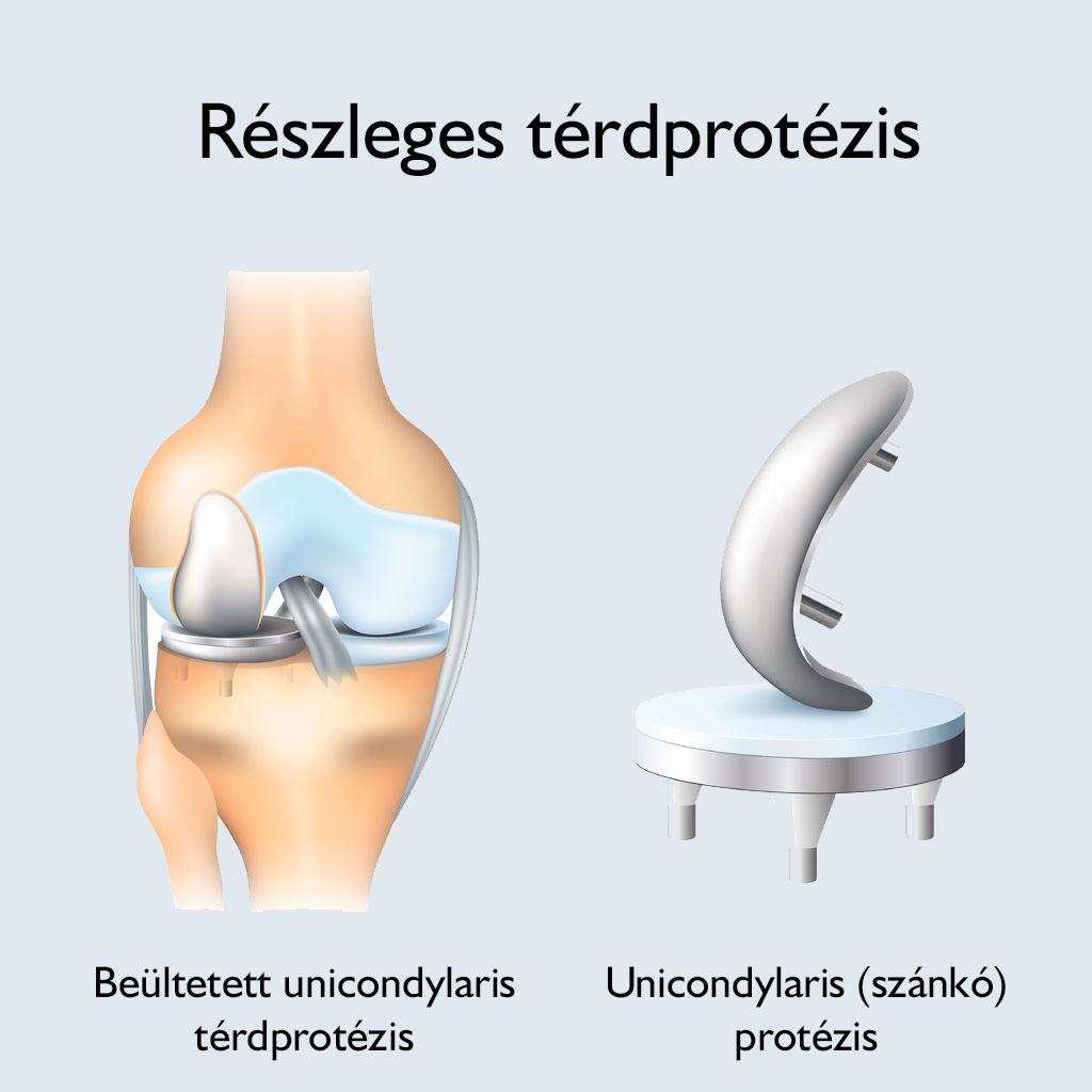 protézisízület fáj
