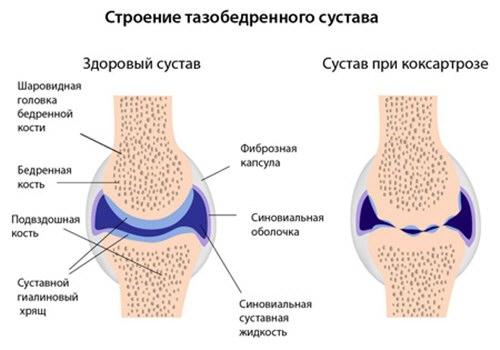 csípőízület artrózisának kezelése 3 fokkal