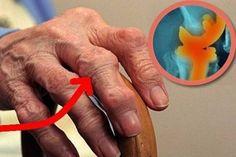 emberi carpal ízületi kezelés)