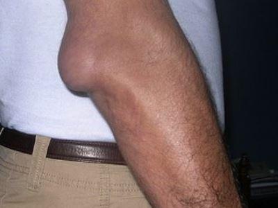 térd gonarthrosis kezelés