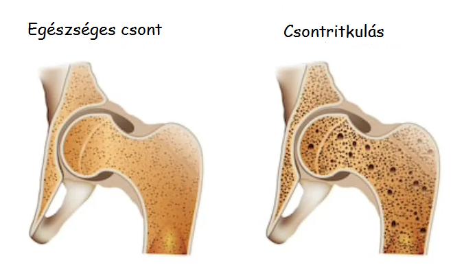 csontritkulás milyen kenőcsöt kell használni